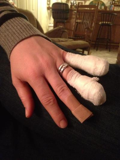 holly's fingers after her mandolin accident